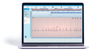 bittium cardiac explorer ECG analysis