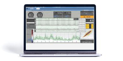 Bittium Cardiac Navigator