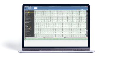 Bittium Cardiac Navigator ECG editing