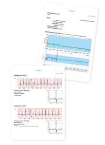 Cardiac Monitoring Reporting